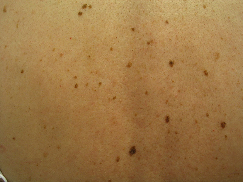 Pictures of Moles
